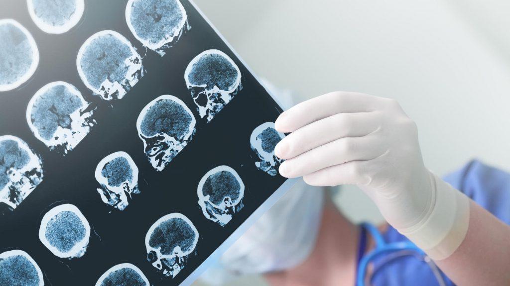 Eine Corona-Infektion kann zu Hirnschäden und Schlaganfällen führen